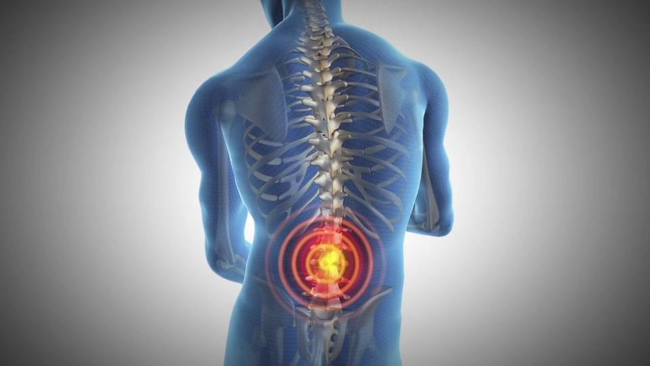 Symptoms of scatia, lower back pain