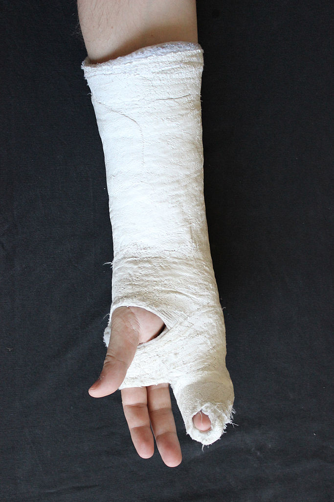hand fracture, fracture hand