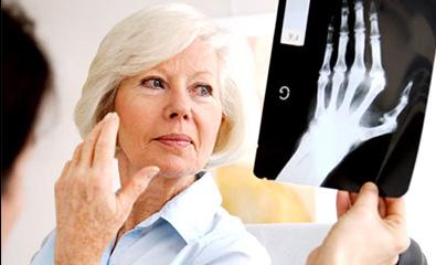 ankylosing arthritis