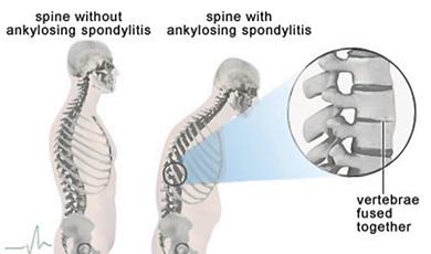 ankylosing spondylitis symptoms, ankylosing spondylitis
