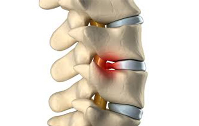 Disc Problems and Back injuries, physiotherapy for back pain