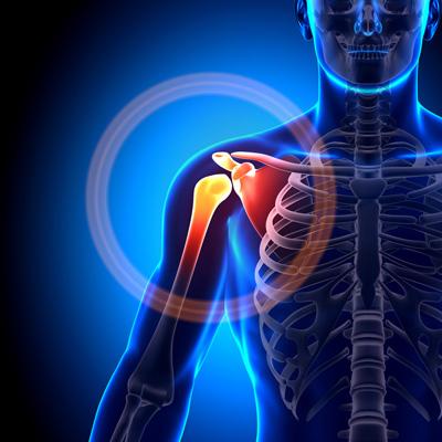 shoulder pain, pain in shoulder