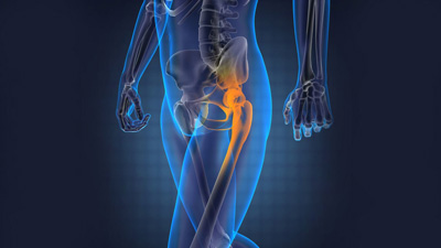 Hip Problem, hip replacement surgery