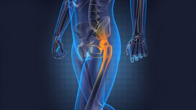 Hip Problem, hip replacement surgery