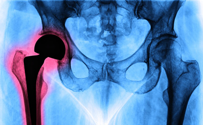 Causes of Hip Problem, total hip replacement