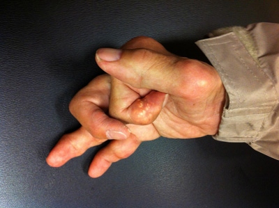 Causes for joint pain, joint pain swelling in hands, gout in hand