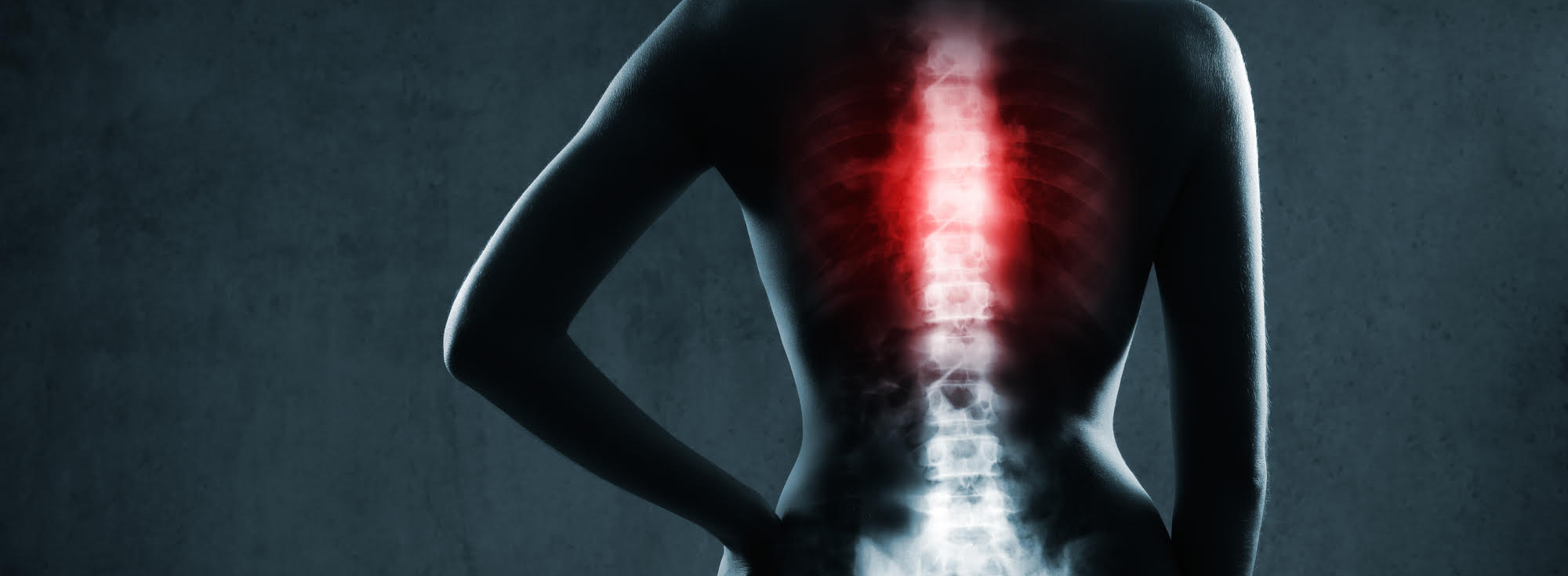 Spinal Disorder, physical therapy for spine surgery