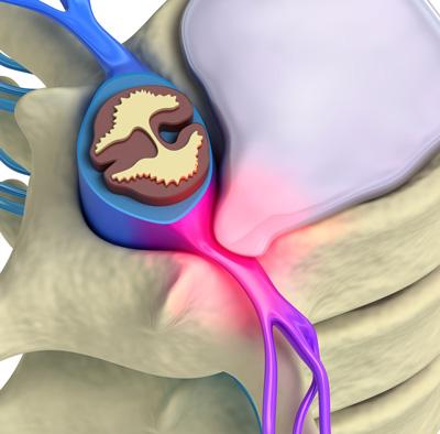 Slip Disc, disc herniation