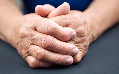 Arthritis, arthritis in hand