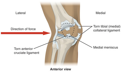 Ligament Tear, ligament injury