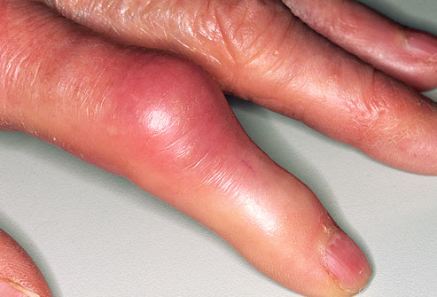symptoms of rheumatoid arthritis, early rheumatoid arthritis symptoms, swelling of joints