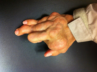 rheumatoid arthritis, gout in the hand