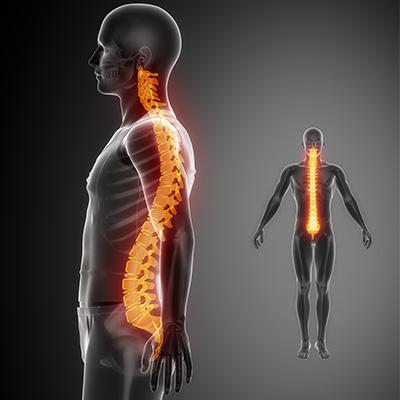 spinal cord injury, Vertebral column