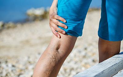 Symptoms of spine stenosis, leg weakness, varicose vein,