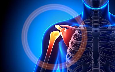symptoms of frozen shoulder