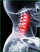 Symptoms of Cervical Spondylosis